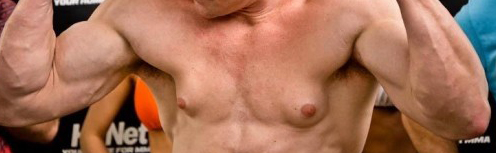 "Gynecomastia or ""Bitch tits"" from steroid use"