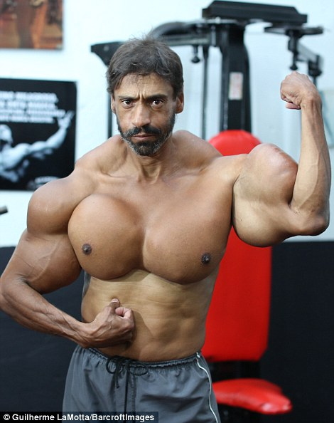 Brazil WIMP who injected himself wants to get BIGGER
