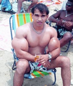 Dangers of Synthol