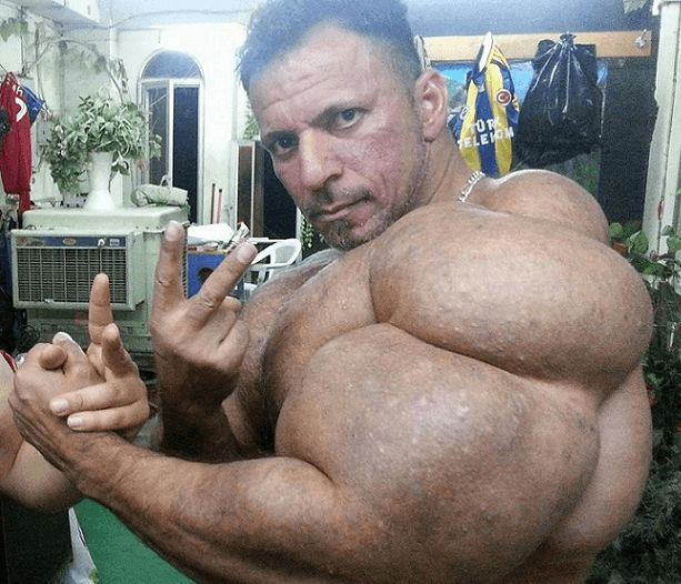 Synthol bodybuiler