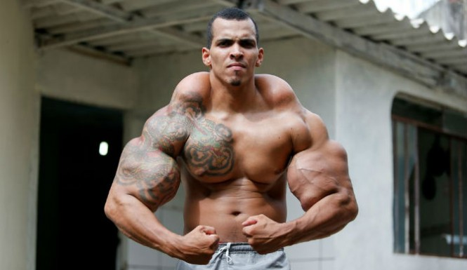 Synthol user
