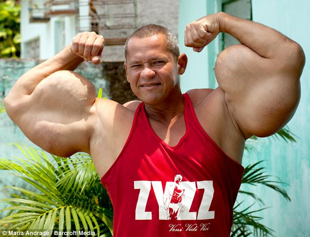 Synthol and bodybuilding
