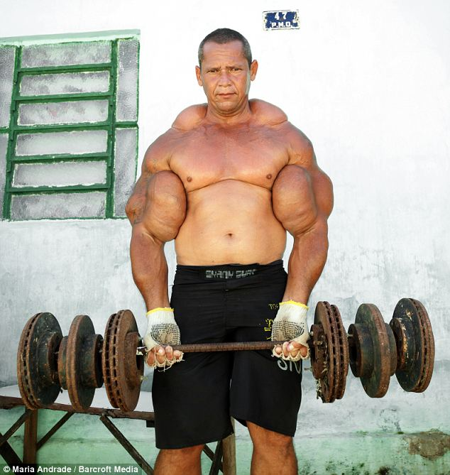 Brazilian Synthol bodybuilder