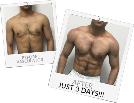Before and After Vasculator photos