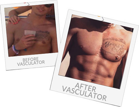 Before and after Vasculator