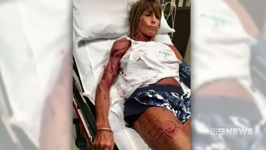 Kangaroo attacks bodybuilder Debbie Urquhart