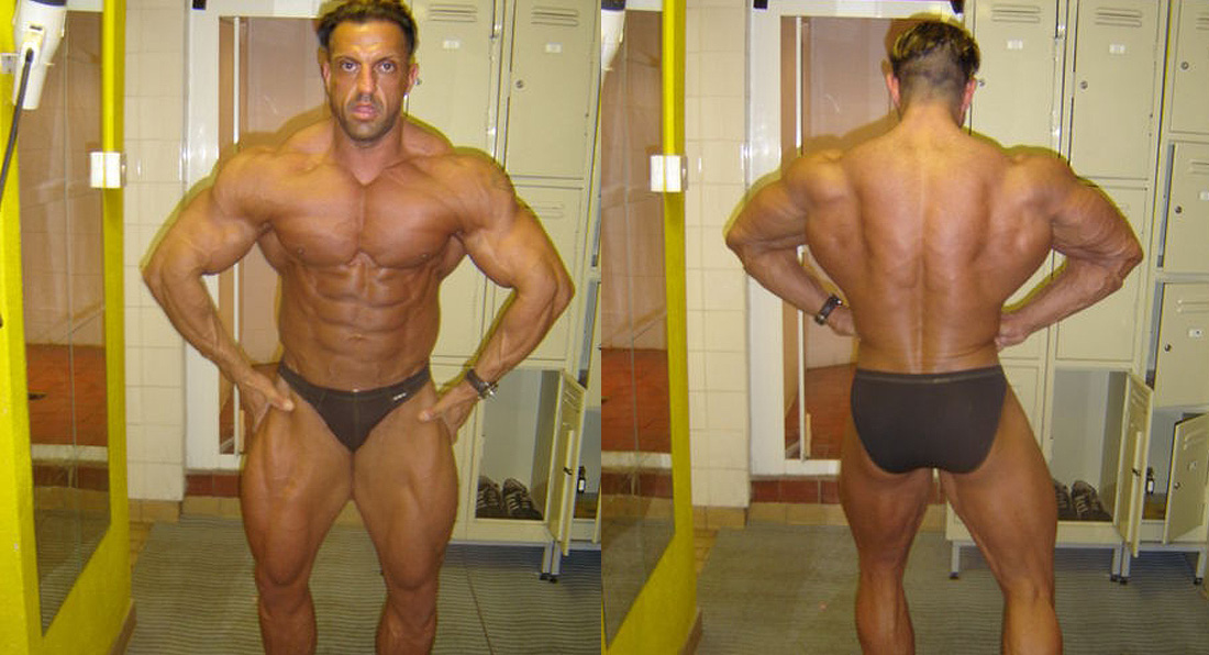 Dr Zak Pallikaros 4 weeks out photos
