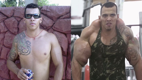 Romario Santos Alves before and after