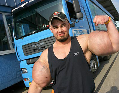 Synthol in bodybuilding is rife