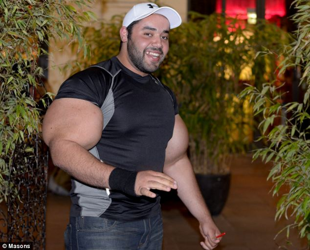 Bodybuilder and his Synthol arms