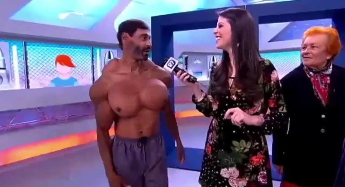 WTF is this? Man injects Synthol all over the place